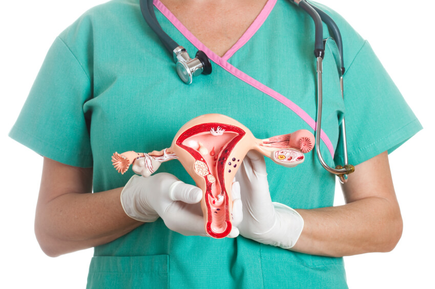 a doctor holding a model ovary