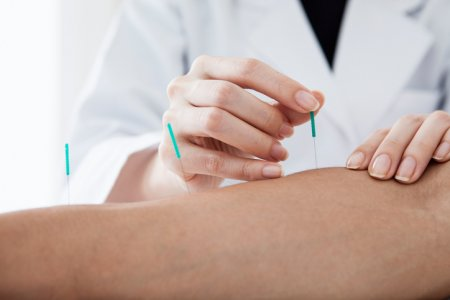Doctor that the acupuncture treatment to the patient's arm